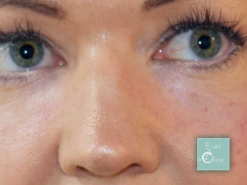 How do I get rid of dark circles under my eyes?