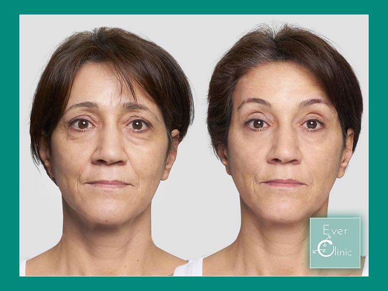 Non Surgical Facelift Treatment Glasgow |Thread Face Lift