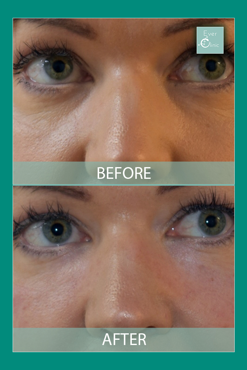 Dark Circles Under Eyes Treatment Glasgow   Ever Clinic