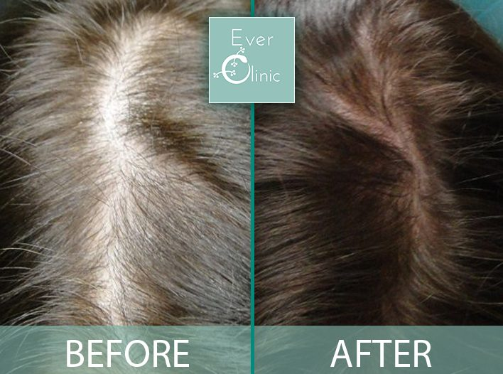 hair rejuvenation glasgow