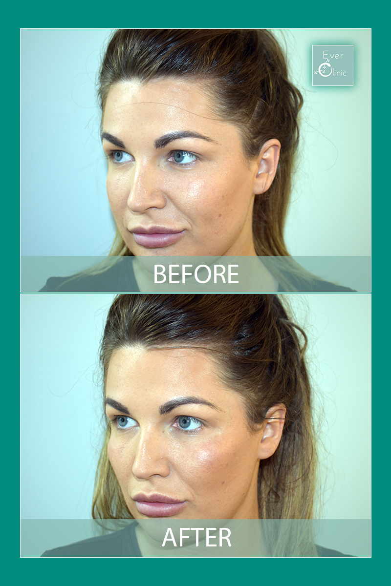 Cheek Fillers Glasgow | Quality Dermal Fillers | Ever Clinic