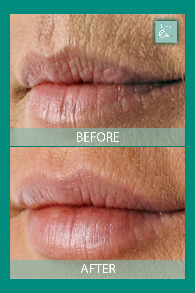 Smokers Lines Glasgow | Lipstick Line Treatment | Ever Clinic
