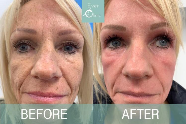 laser skin resurfacing glasgow