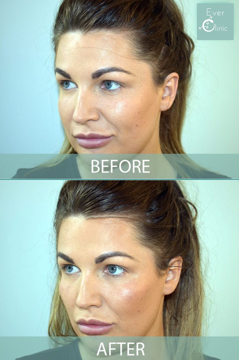 injectable fillers glasgow