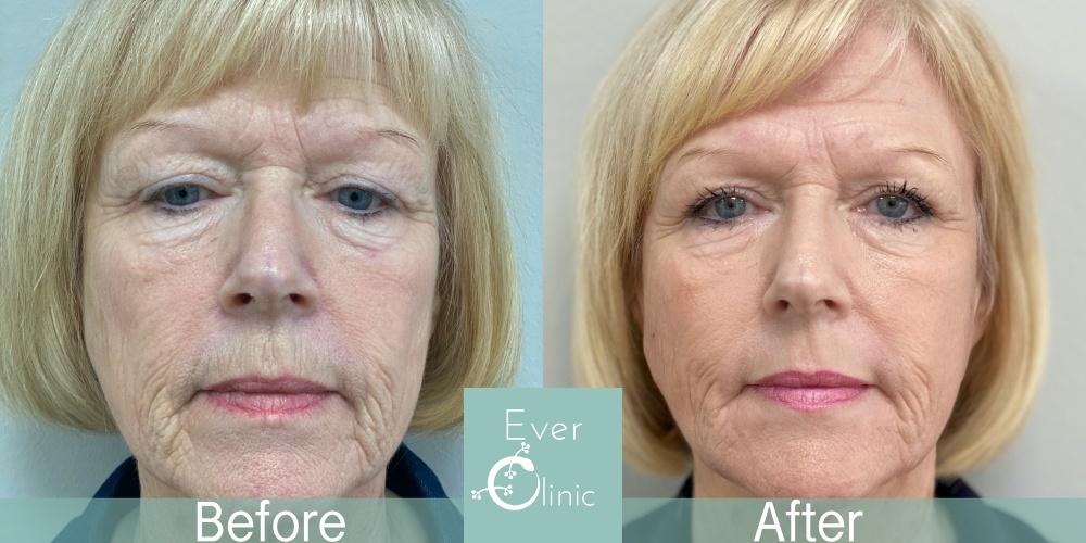glasgow skin resurfacing