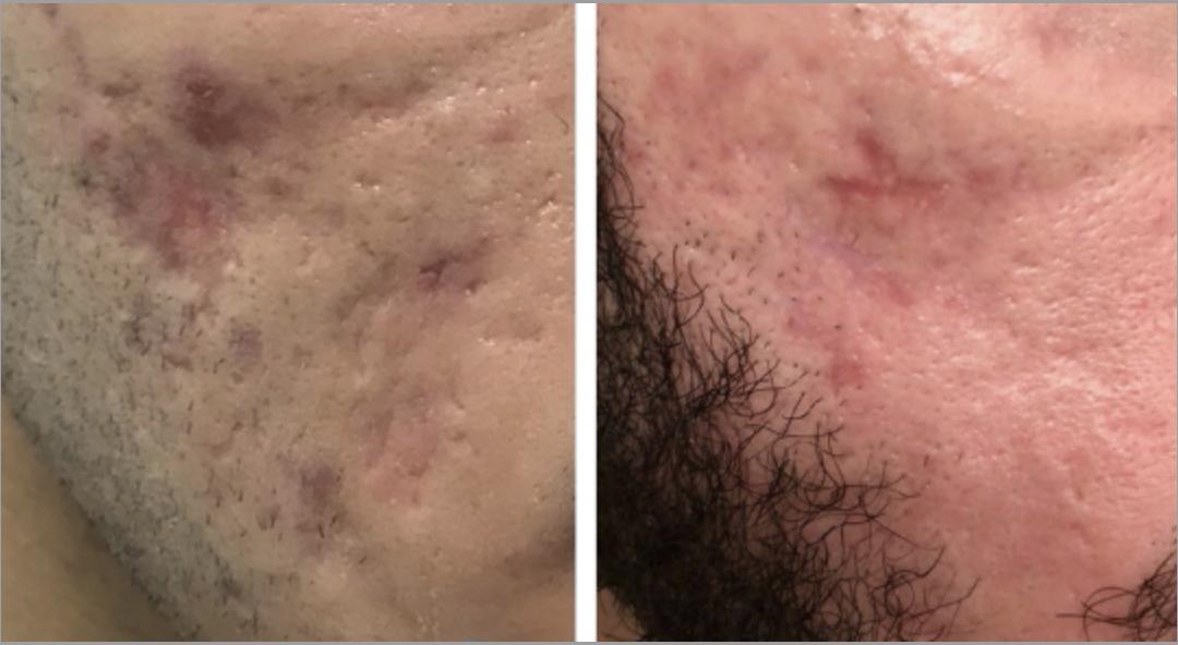acne scarring glasgow