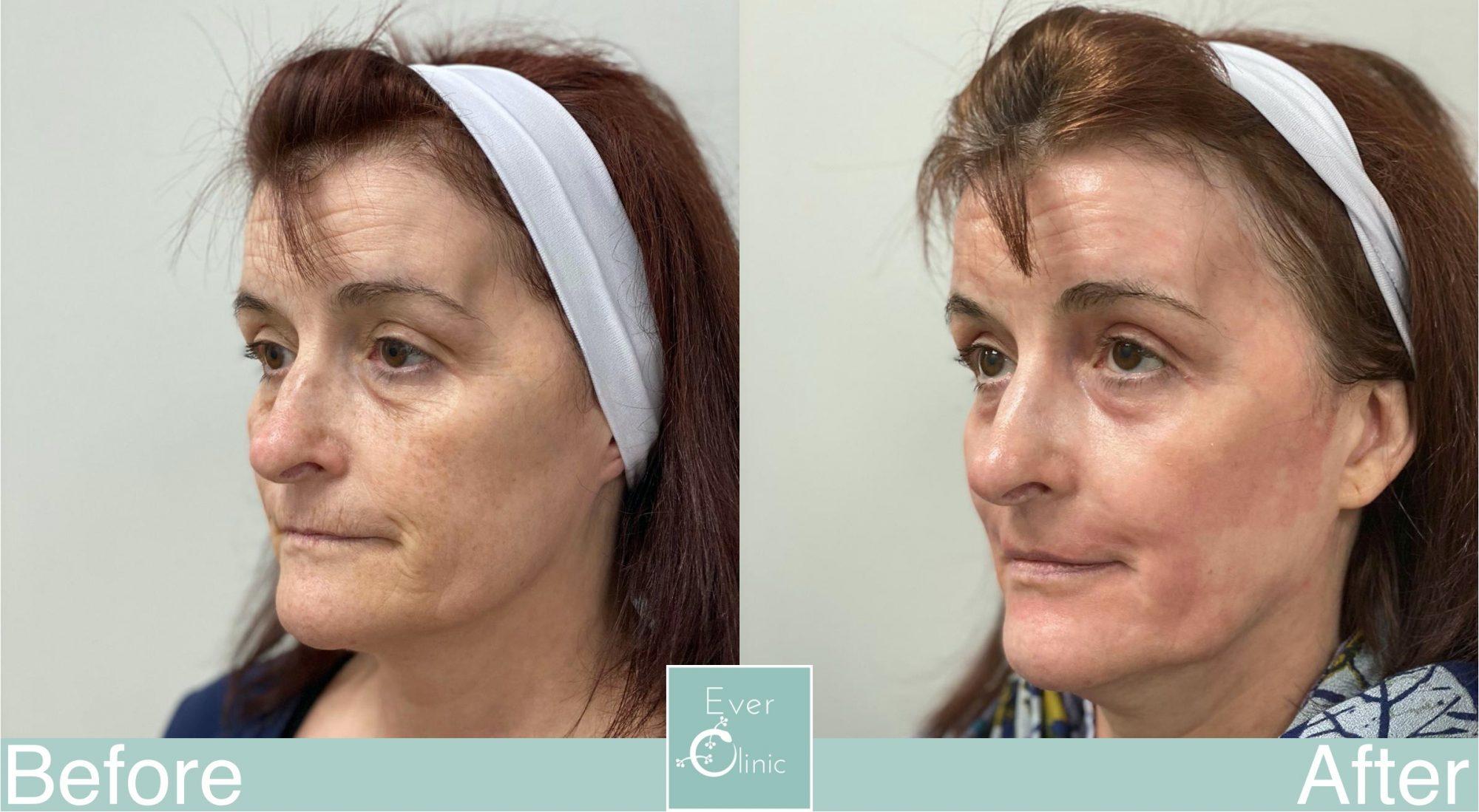 abrasive skin laser resurfacing