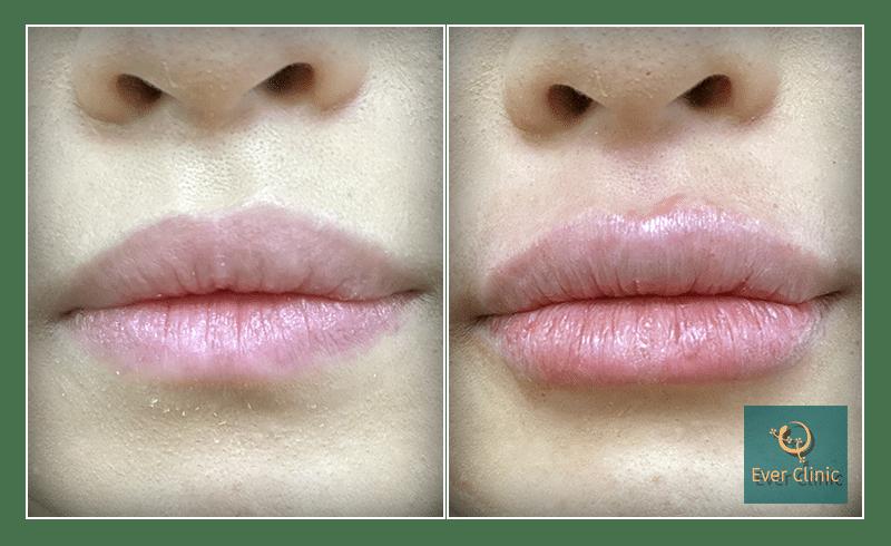 Lip Filler Cost